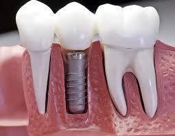 Implant image 1