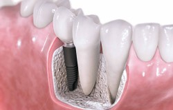 dental-implants-vancouver-wa