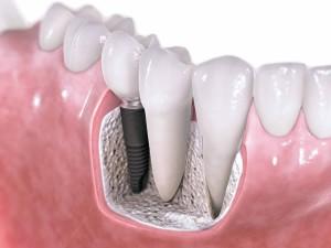 dental-implants-vancouver-wa