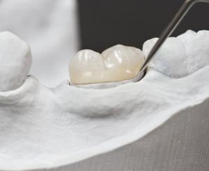 Dental Tooth Fillings