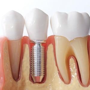 front teeth crown