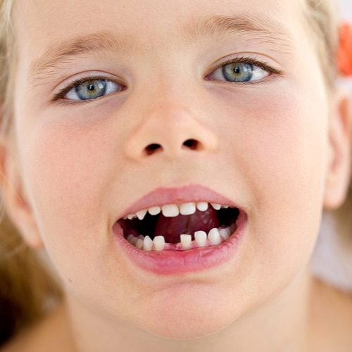What To Do If Your Child Knocks Out A Tooth