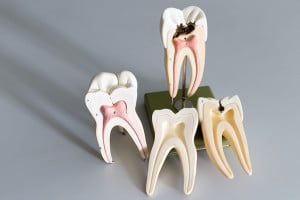 Dental Implantology