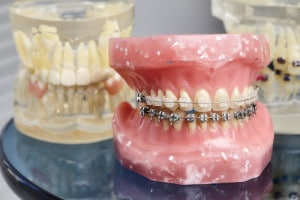 Dental Implants Aesthetics