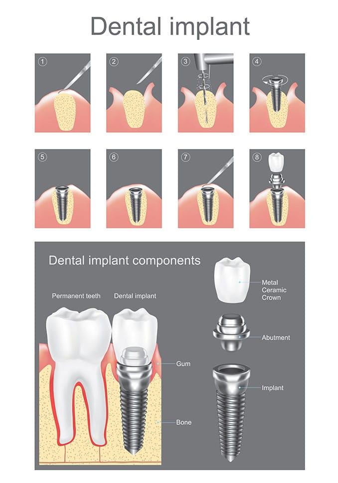 Dental Implants Components