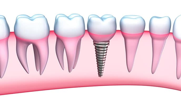 Dental Implants Teenagers