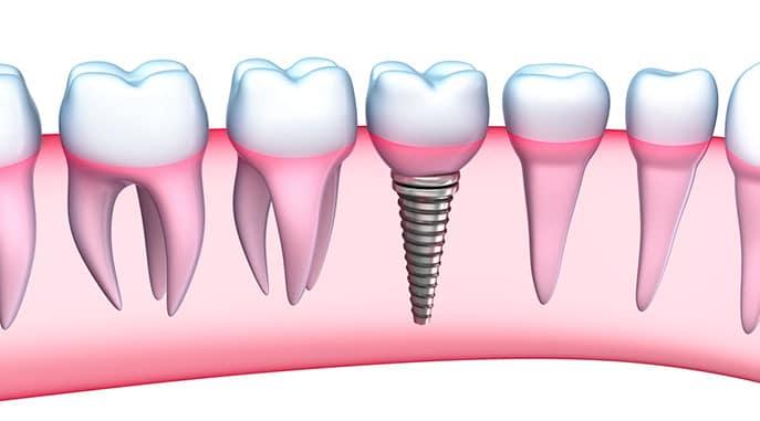 Dental Implants Teenagers