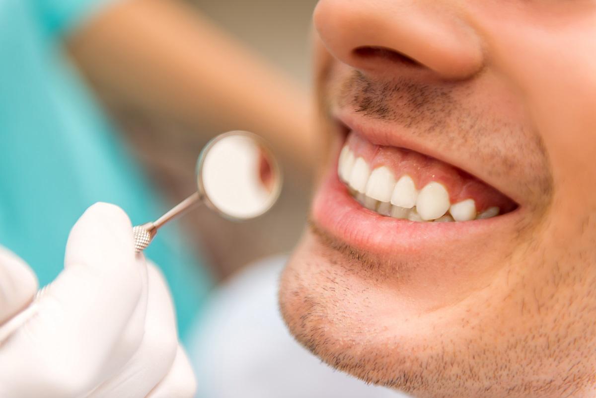 Teeth-whitening - Richmond Hill